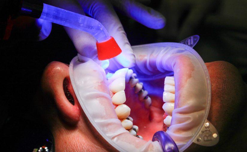 Złe podejście odżywiania się to większe deficyty w jamie ustnej a także ich zgubę